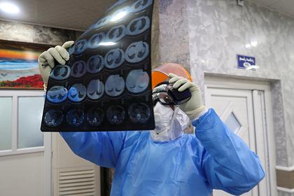 Врач оценил вероятность полного восстановления легких после коронавируса