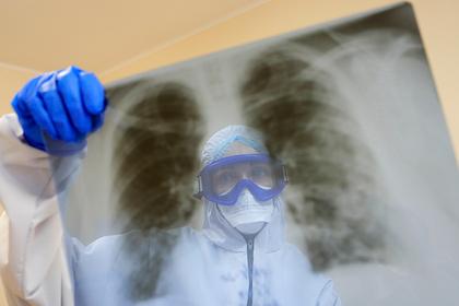 Обнаружено требующее пересадки легких последствие коронавируса