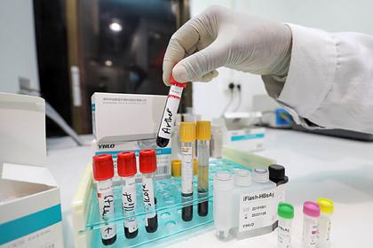 Российским ученым передали образцы мутировавшего коронавируса из Великобритании