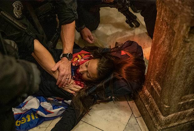 Получившая ранение в Капитолии женщина