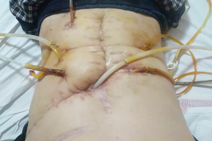 Россиянин остался без помощи врачей после удаления желудка и начал гнить заживо