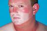 Конкурсант Фабрицио Спуччи (Fabrizio Spucches) в 2020 году снял серию портретов людей. На своих фотографиях он демонстрирует, как пандемия коронавируса изменила привычное поведение и даже внешний вид героев его работ. Например, на этом снимке видно, что у мужчины обгорело лицо на солнце, однако он, очевидно, ходил на улице в медицинской маске, поэтому часть лица осталась белой.