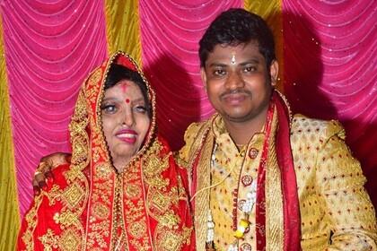 Девушка отказалась от замужества, получила кислотой в лицо и встретила любовь