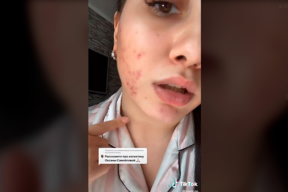 Российская блогерша покрылась прыщами от косметики Оксаны Самойловой