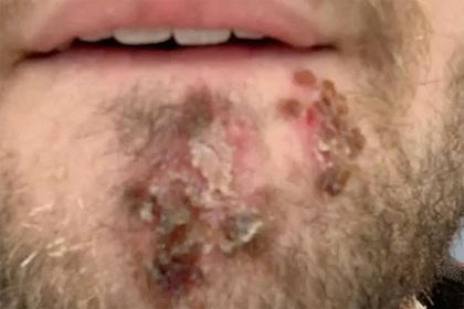 Мужчина воспользовался бритвой соседа и чуть не лишился лица