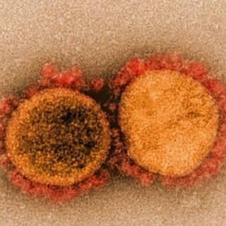 Электронная микроскопия частиц вируса SARS-CoV-2, изолированных от пациента