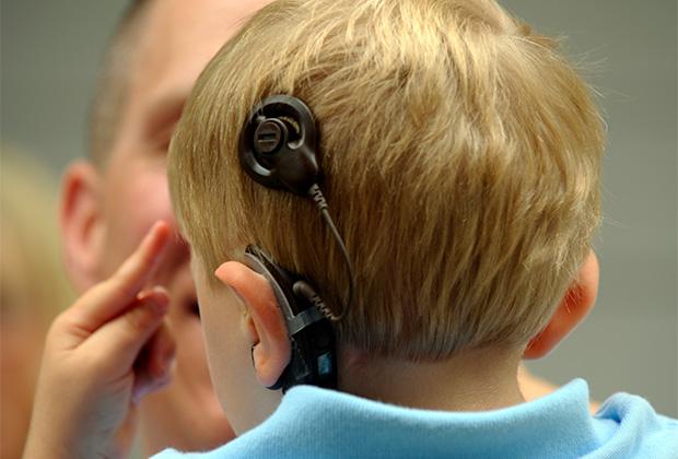Эти чипы воздействуют непосредственно на слуховой нерв и позволяют компенсировать потерю слуха.