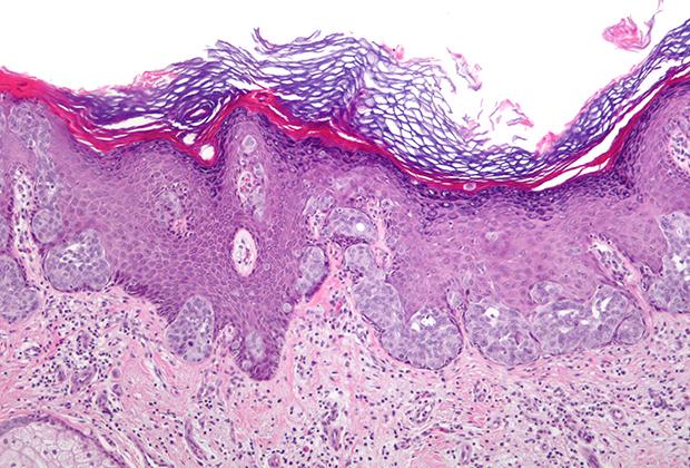 Клетки карциномы