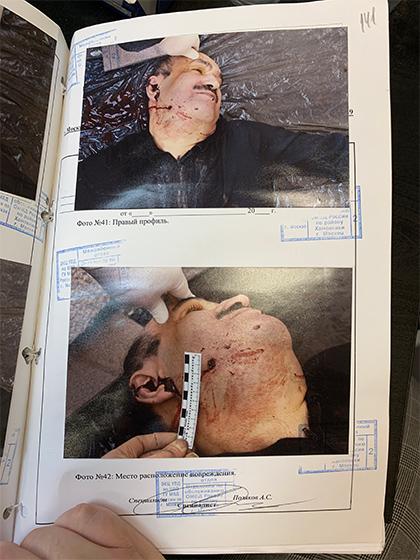 Тело вора в законе Ильгара Алиева (Данабаша), расстрелянного киллером
