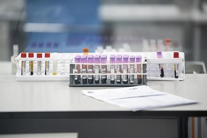 Число заразившихся COVID-19 в Москве превысило полтора миллиона